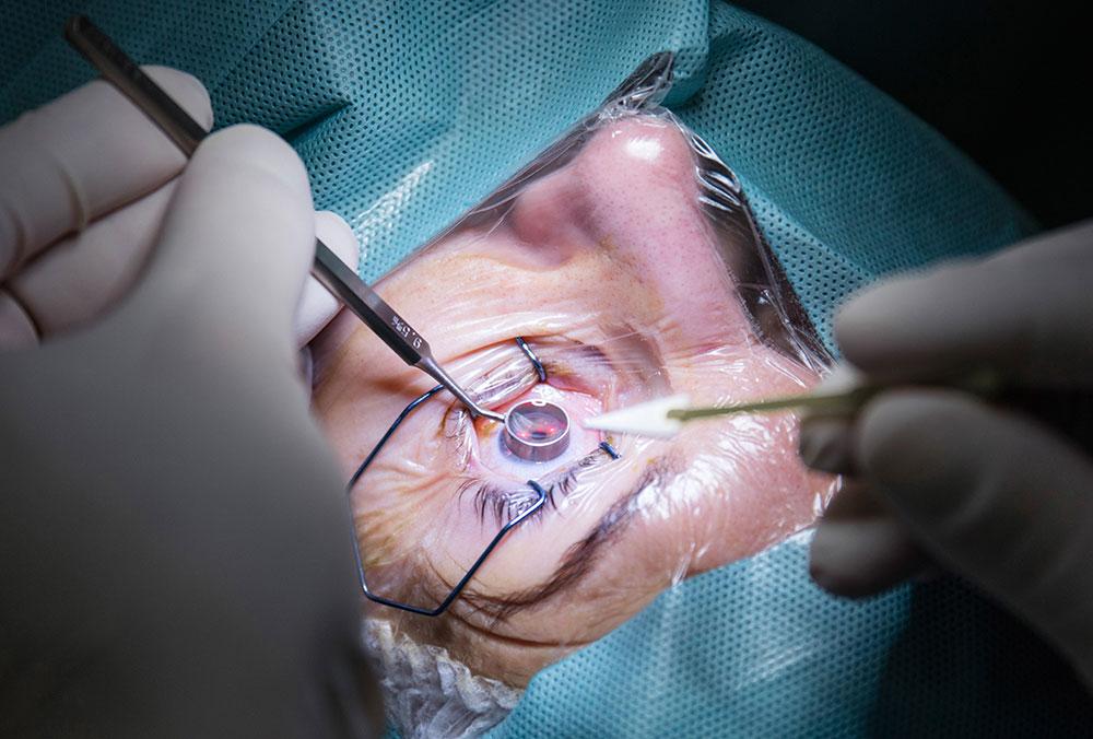 cirugía de cross linking