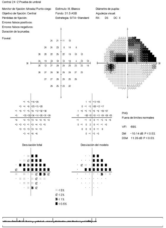CAMPIMETRIA VISUAL
